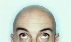 skallet mann